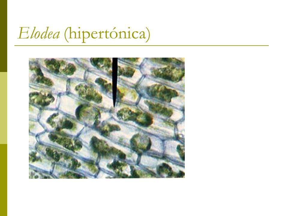 Elodea (hipertónica)