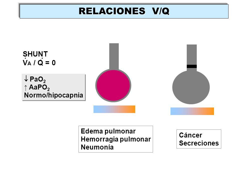 RELACIONES V/Q . . . SHUNT VA / Q = 0  PaO2 ↑ AaPO2 Normo/hipocapnia