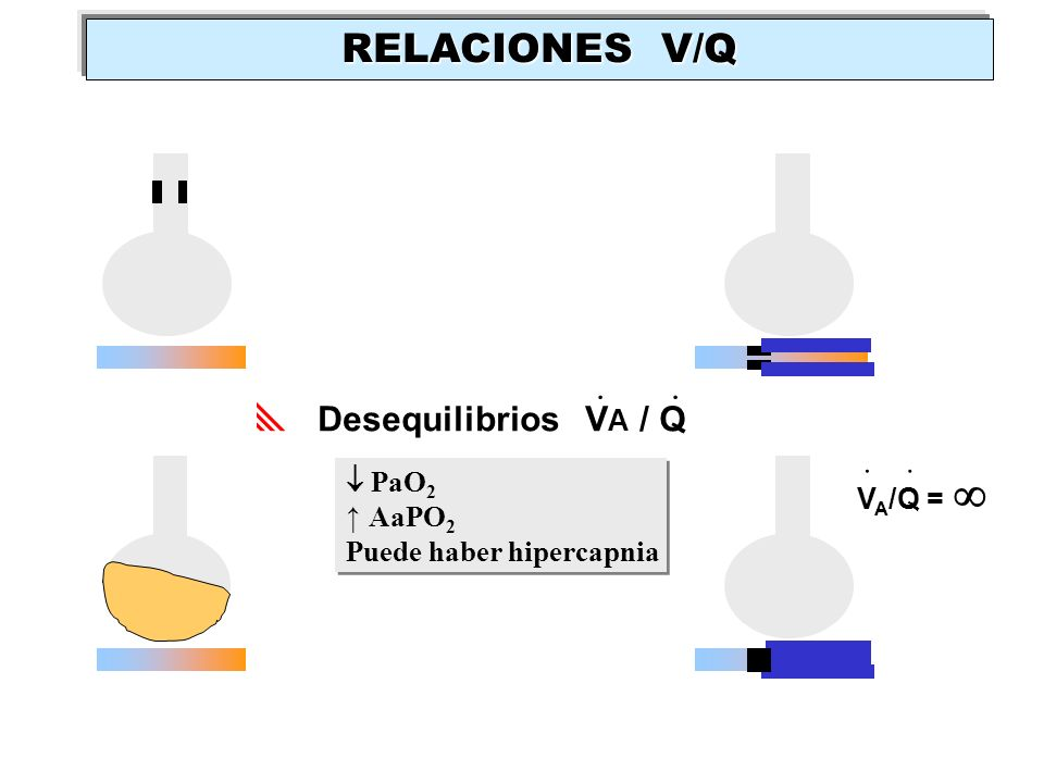 RELACIONES V/Q . . Desequilibrios VA / Q .  PaO2 VA/Q =  ↑ AaPO2
