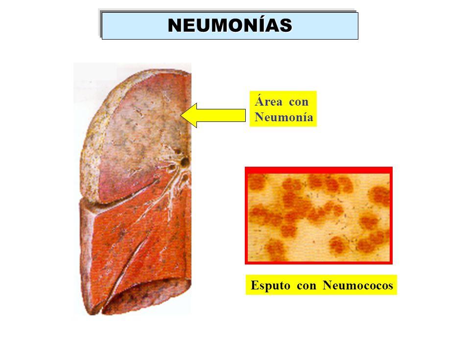 NEUMONÍAS Área con Neumonía Esputo con Neumococos