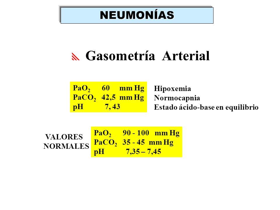 NEUMONÍAS Gasometría Arterial PaO2 60 mm Hg Hipoxemia PaCO2 42,5 mm Hg