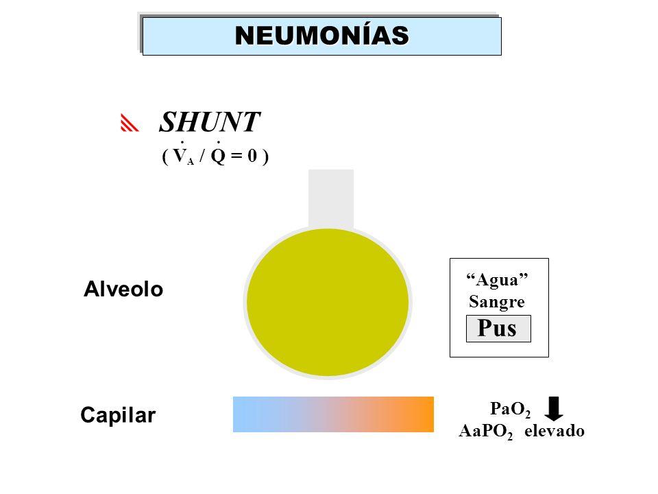 NEUMONÍAS SHUNT . Pus Alveolo Capilar ( VA / Q = 0 ) Agua Sangre