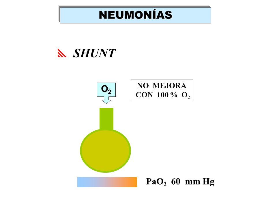 NEUMONÍAS SHUNT NO MEJORA CON 100 % O2 O2 PaO2 60 mm Hg