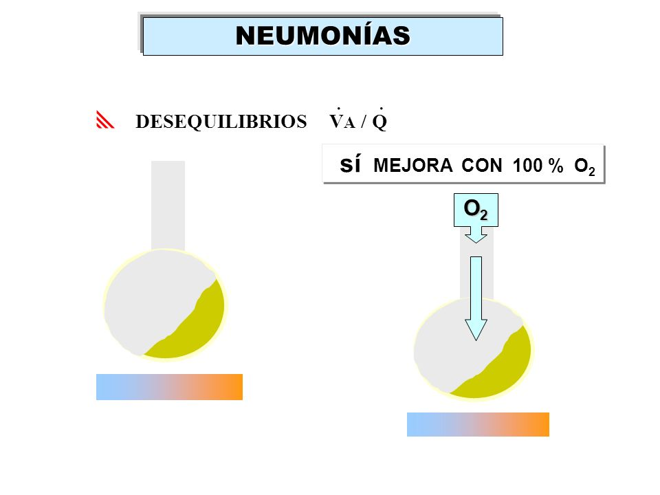 NEUMONÍAS . . DESEQUILIBRIOS VA / Q sí MEJORA CON 100 % O2 O2