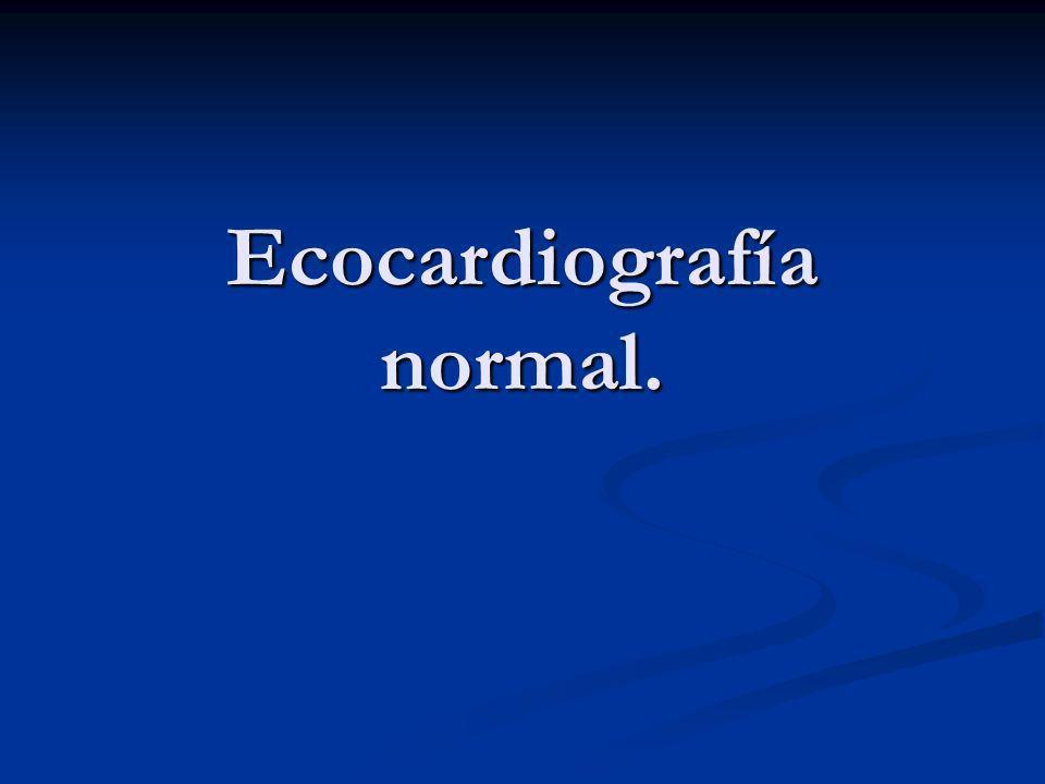 Ecocardiografía normal.