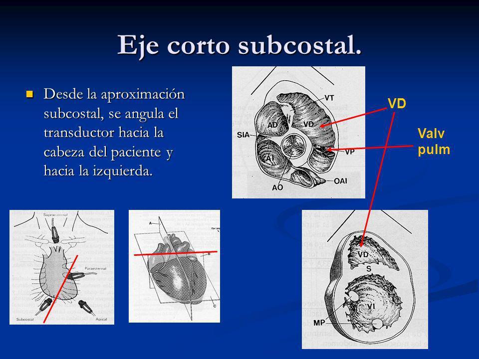 Eje corto subcostal. Desde la aproximación subcostal, se angula el transductor hacia la cabeza del paciente y hacia la izquierda.