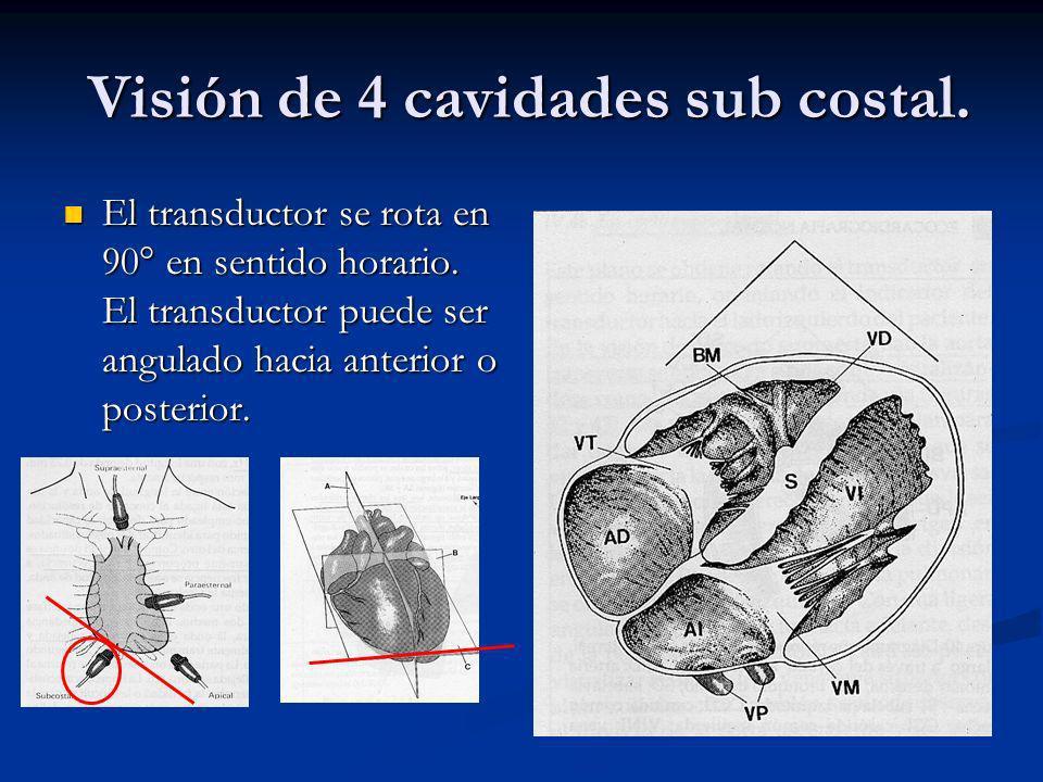 Visión de 4 cavidades sub costal.