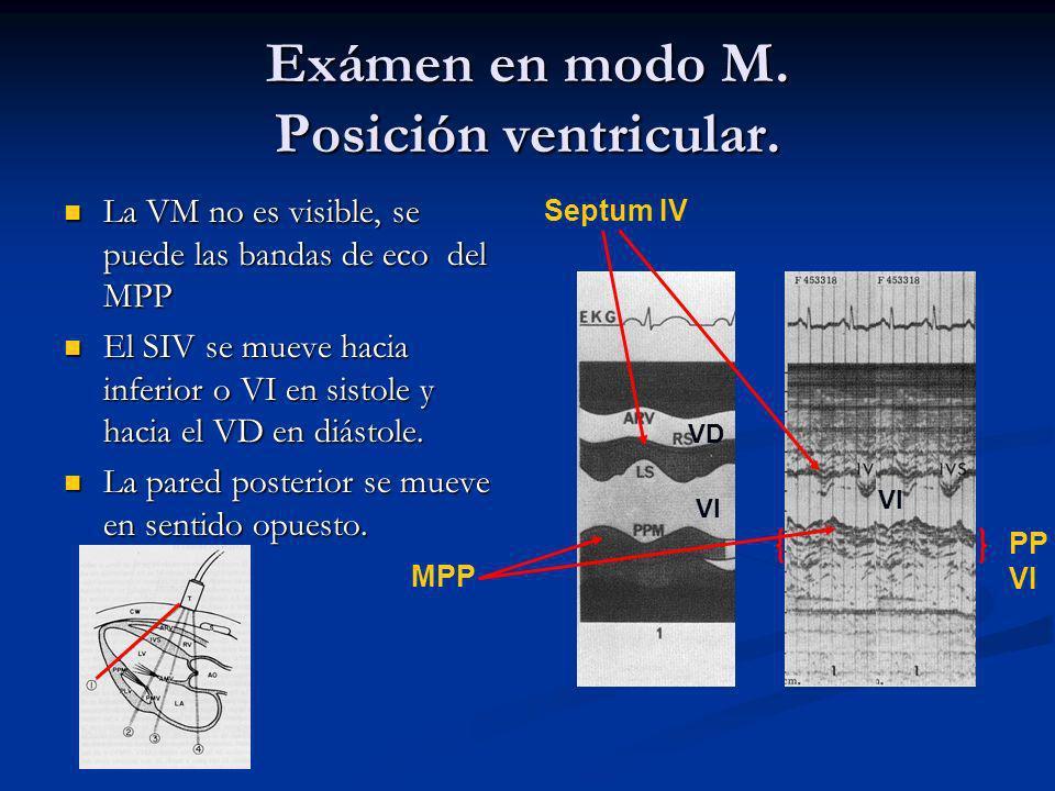 Exámen en modo M. Posición ventricular.