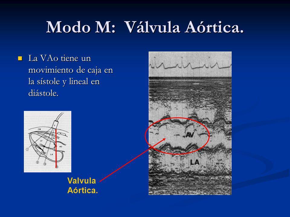 Modo M: Válvula Aórtica.