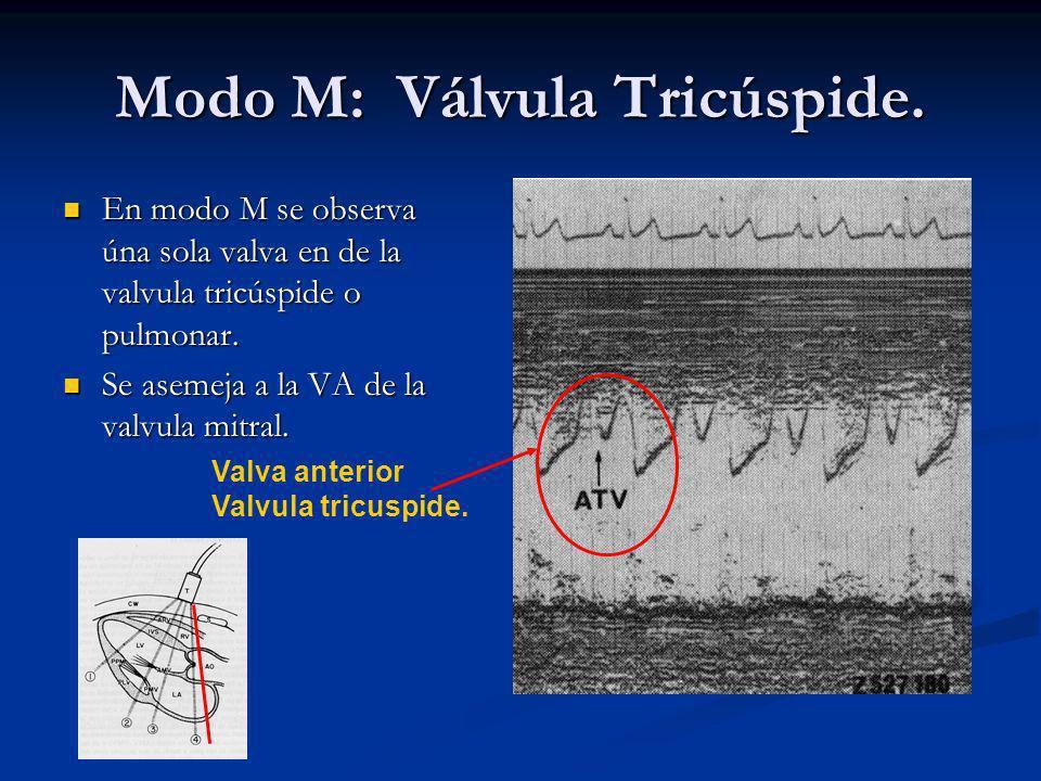 Modo M: Válvula Tricúspide.
