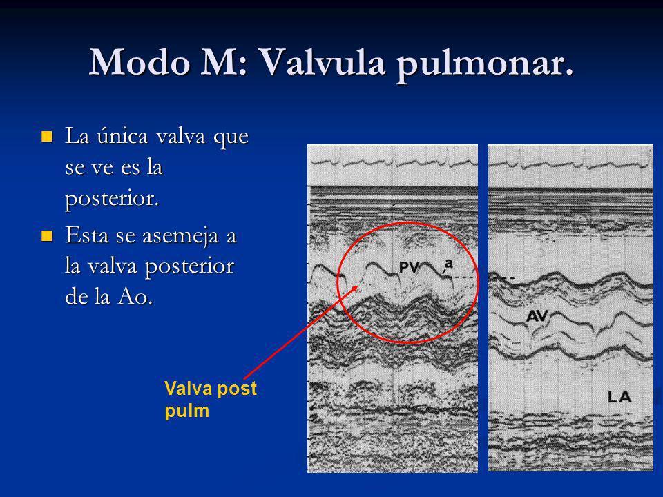 Modo M: Valvula pulmonar.