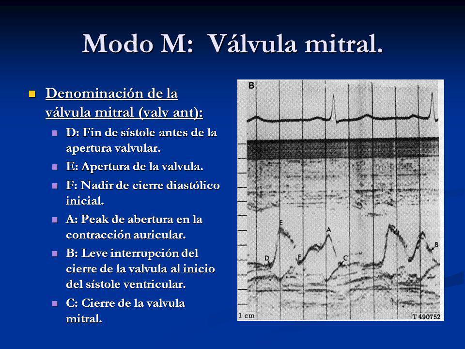 Modo M: Válvula mitral. Denominación de la válvula mitral (valv ant):