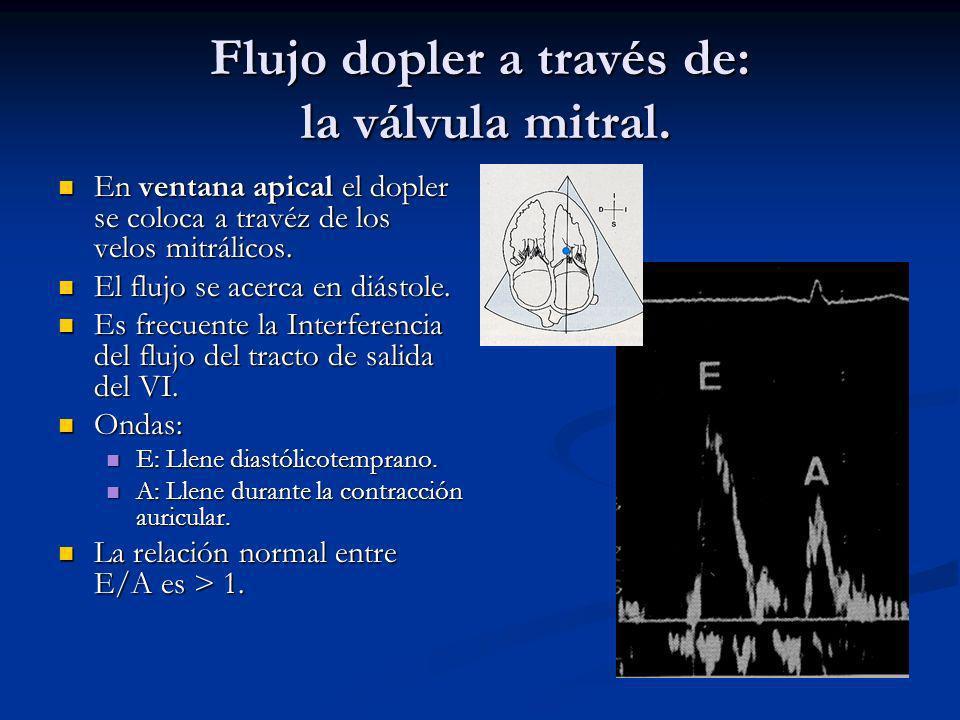 Flujo dopler a través de: la válvula mitral.