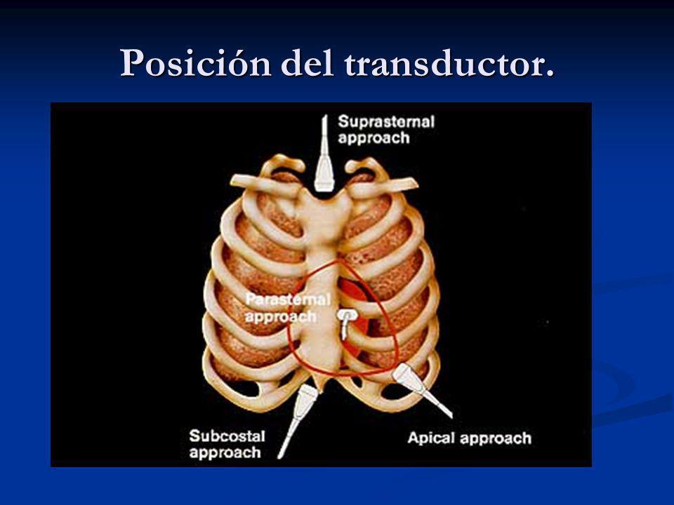 Posición del transductor.