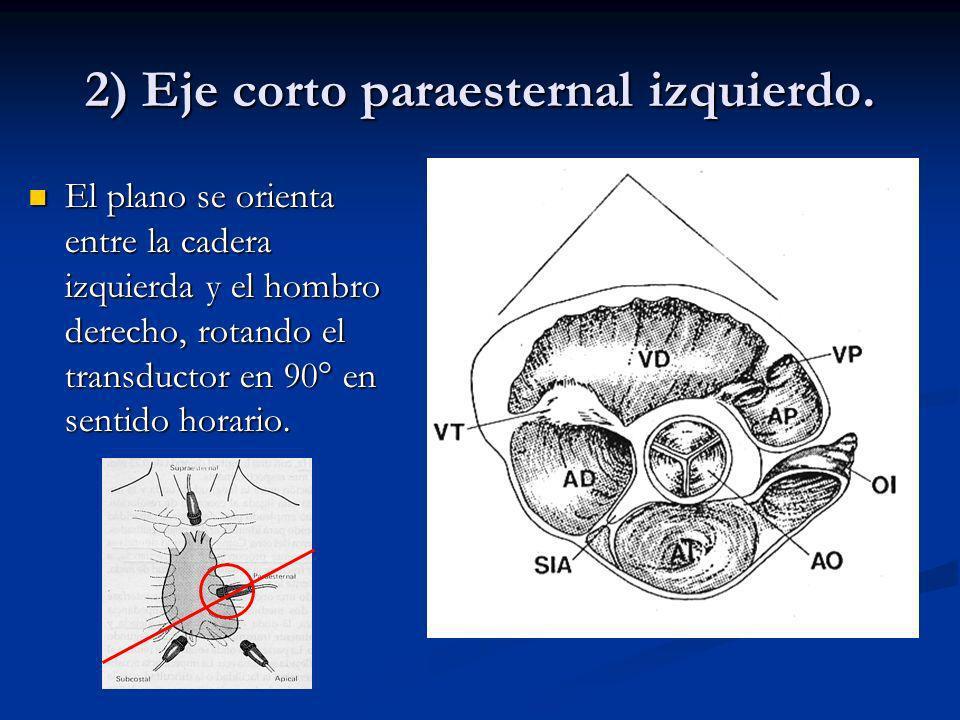 2) Eje corto paraesternal izquierdo.