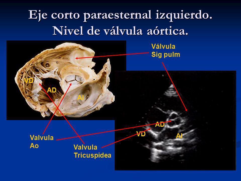 Eje corto paraesternal izquierdo. Nivel de válvula aórtica.