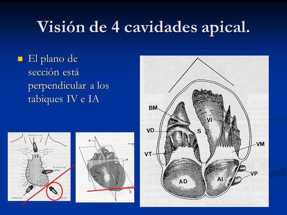Visión de 4 cavidades apical.