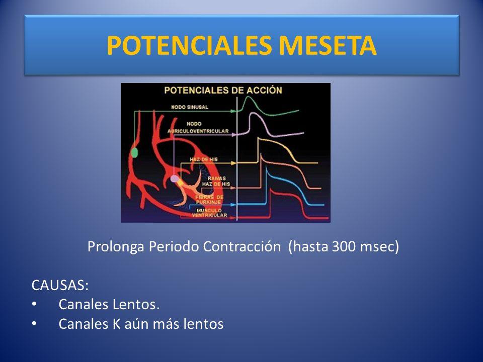 Prolonga Periodo Contracción (hasta 300 msec)