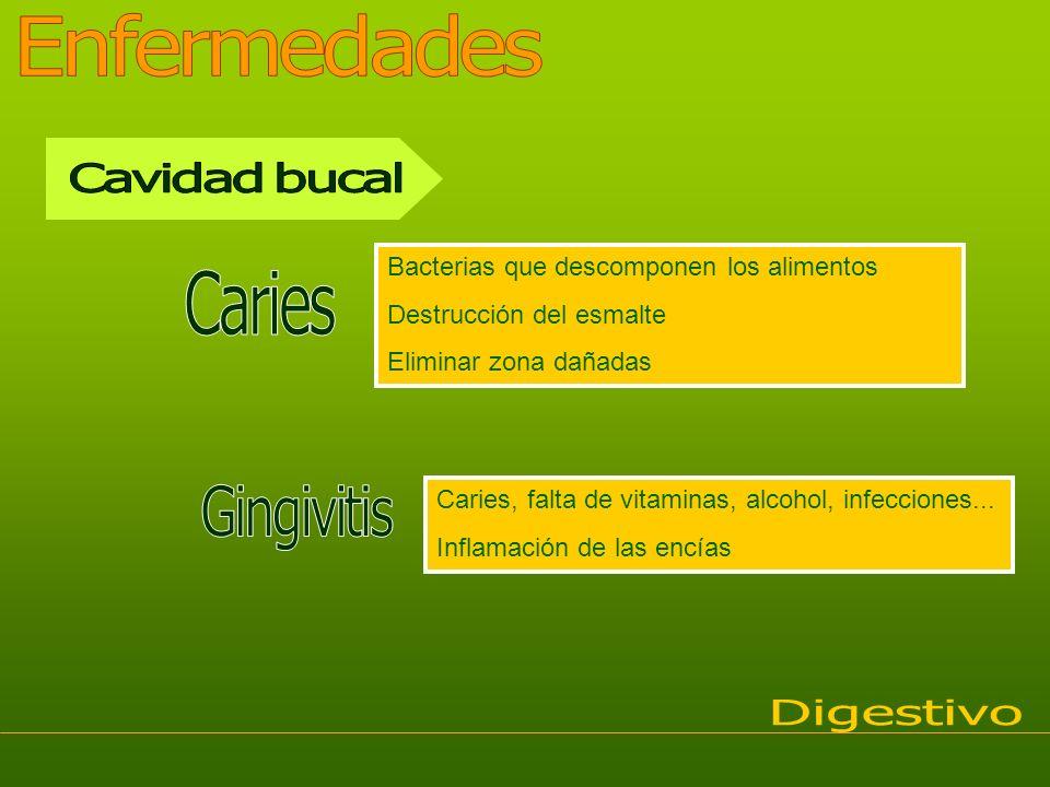 Enfermedades Cavidad bucal Caries Gingivitis Digestivo
