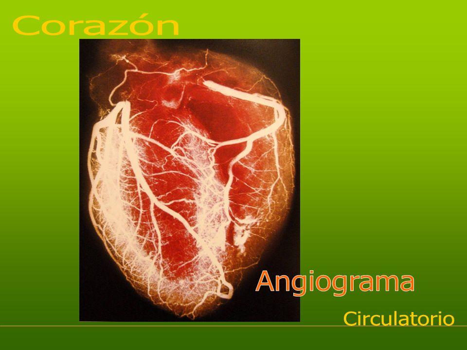 Corazón Angiograma Circulatorio