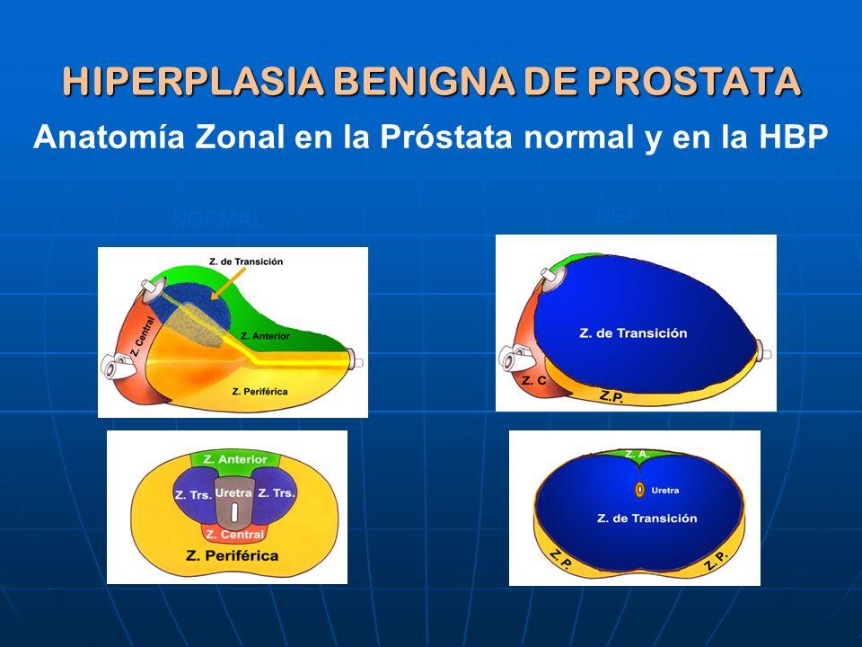 Contemporáneo Anatomía Zonal De La Próstata Ornamento - Imágenes de ...