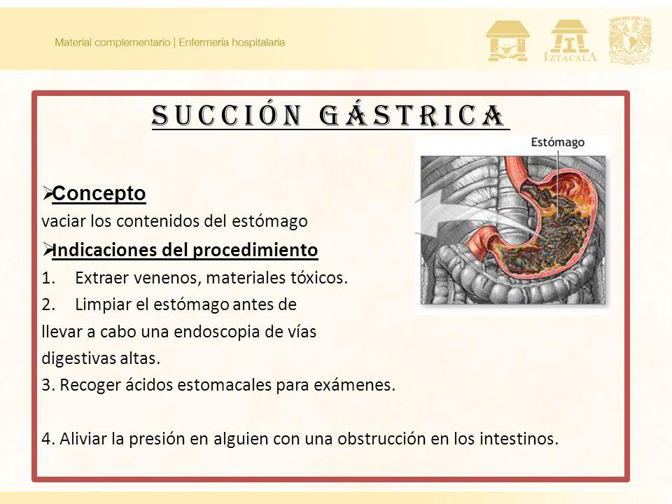 SUCCIÓN GÁSTRICA Concepto Indicaciones del procedimiento