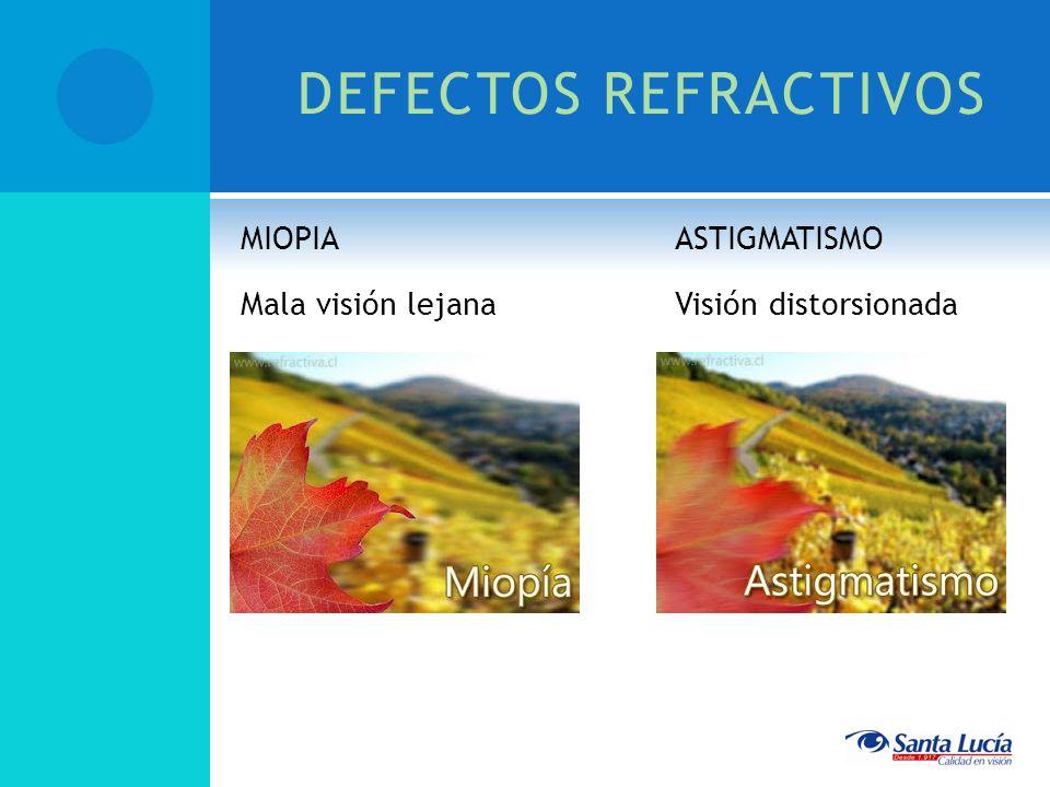 DEFECTOS REFRACTIVOS MIOPIA Mala visión lejana ASTIGMATISMO