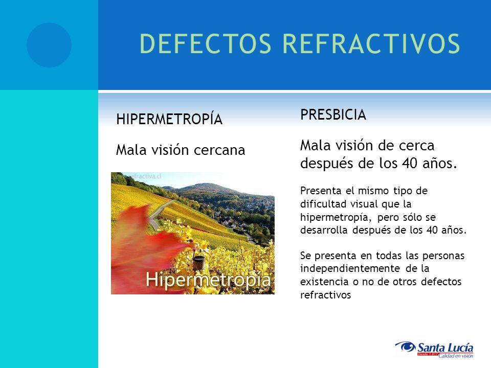 DEFECTOS REFRACTIVOS PRESBICIA HIPERMETROPÍA