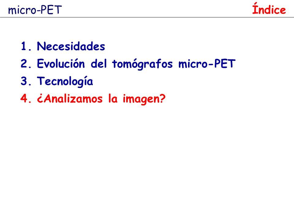 micro-PET Índice Necesidades Evolución del tomógrafos micro-PET Tecnología ¿Analizamos la imagen