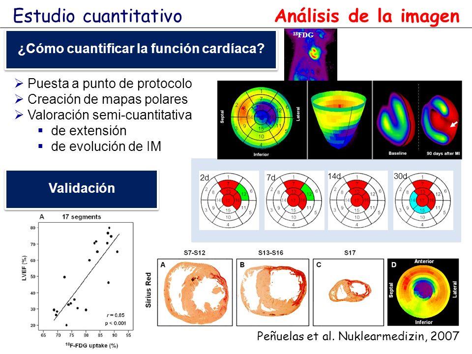 ¿Cómo cuantificar la función cardíaca