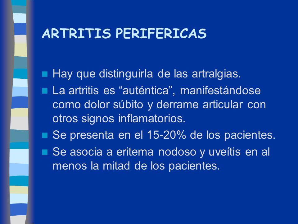 ARTRITIS PERIFERICAS Hay que distinguirla de las artralgias.