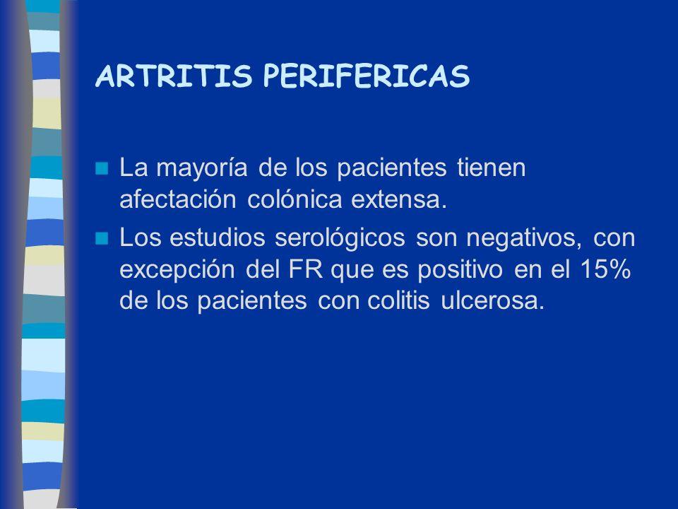 ARTRITIS PERIFERICAS La mayoría de los pacientes tienen afectación colónica extensa.