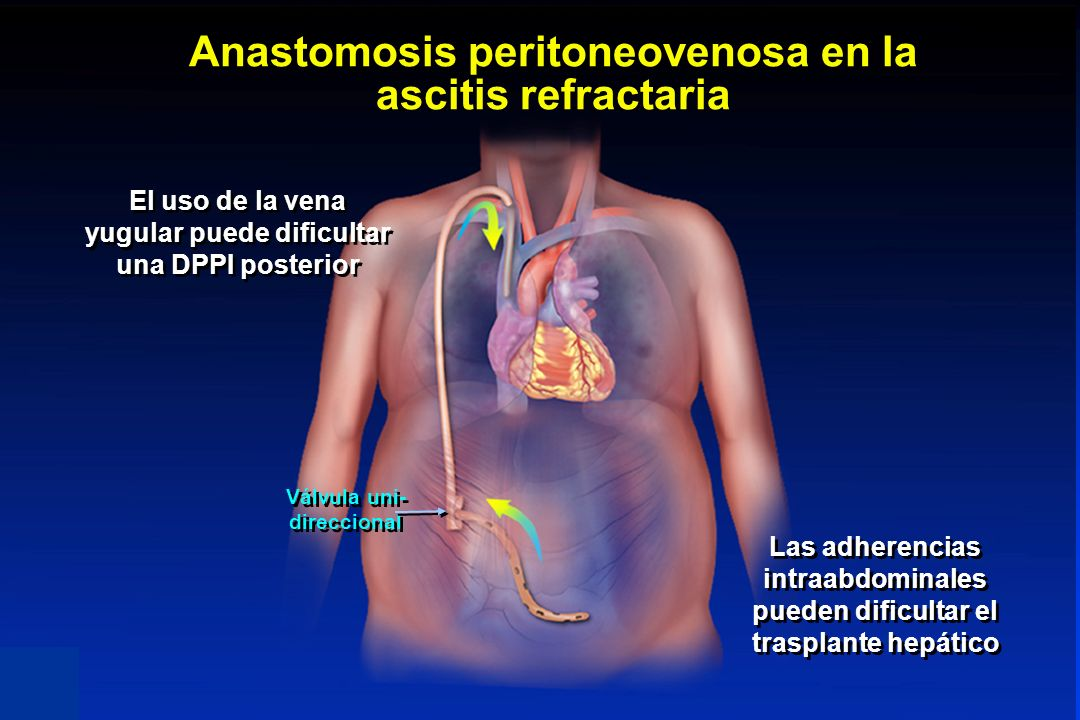 Anastomosis peritoneovenosa en la ascitis refractaria