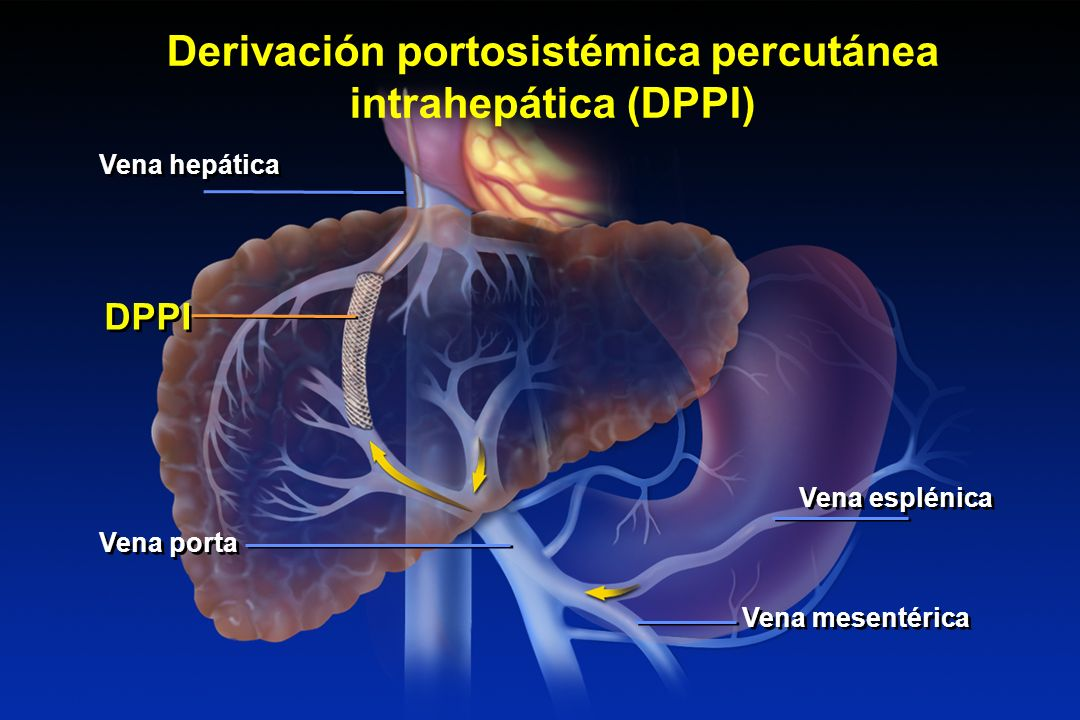 THE TRANSJUGULAR INTRAHEPATIC PORTOSYSTEMIC SHUNT