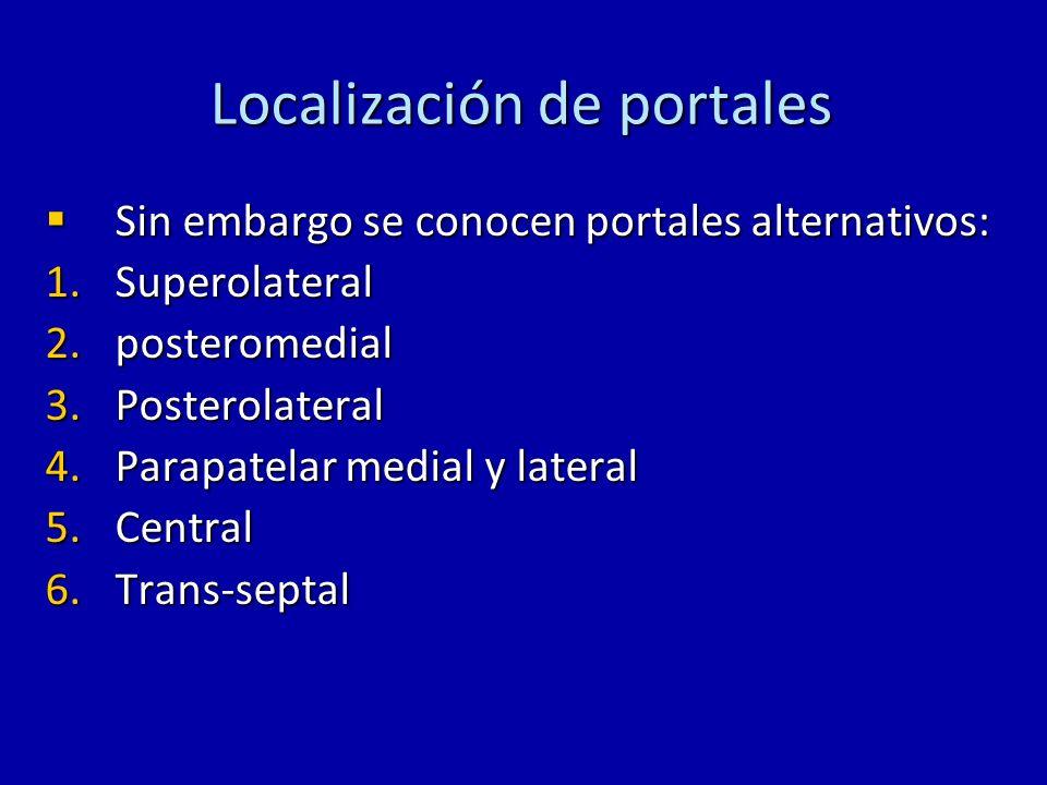 Localización de portales