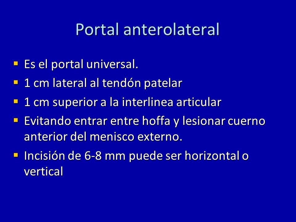 Portal anterolateral Es el portal universal.