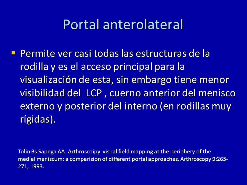 Portal anterolateral