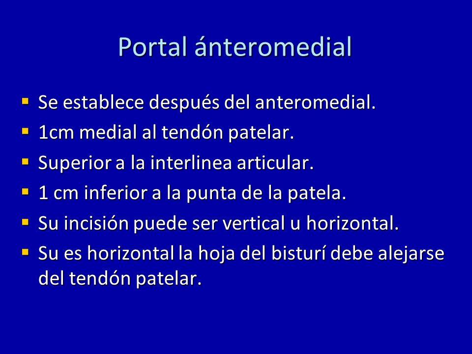 Portal ánteromedial Se establece después del anteromedial.