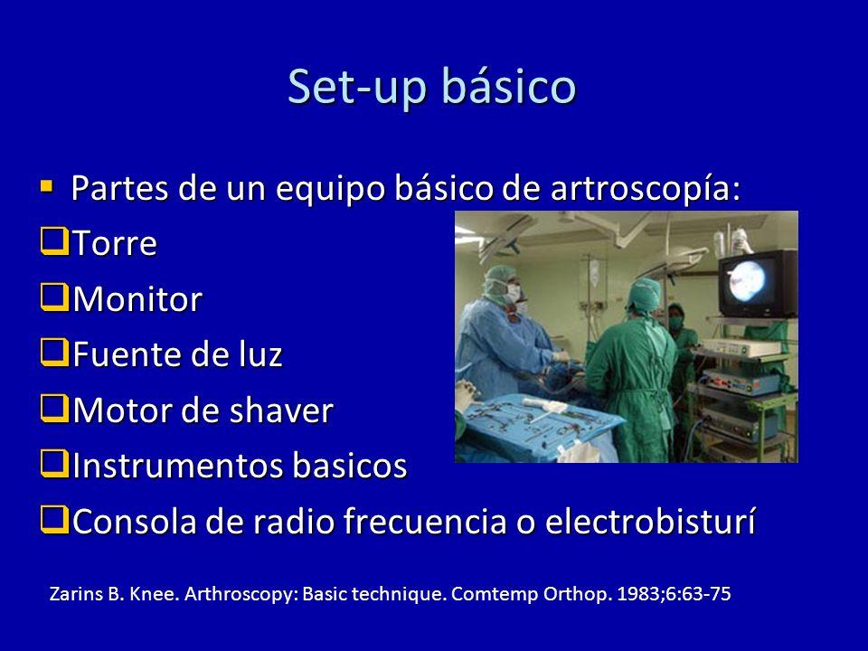 Set-up básico Partes de un equipo básico de artroscopía: Torre Monitor