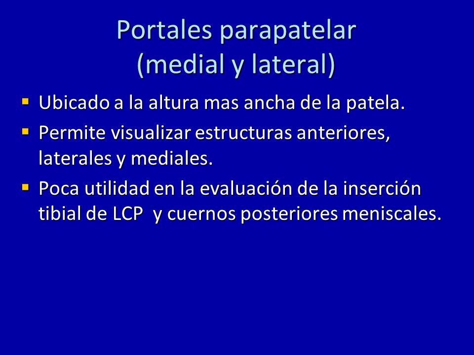 Portales parapatelar (medial y lateral)