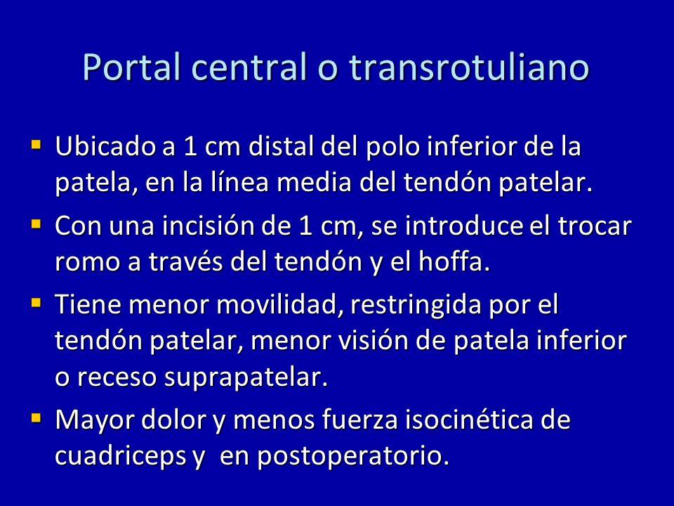Portal central o transrotuliano