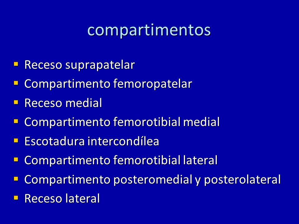 compartimentos Receso suprapatelar Compartimento femoropatelar