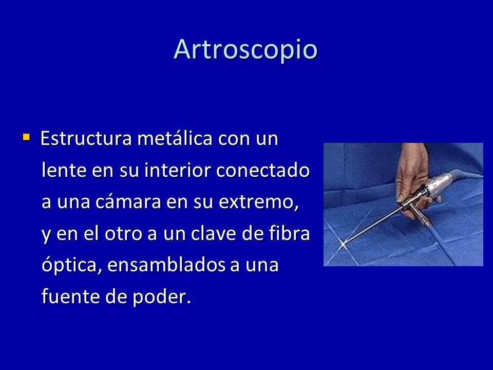 Artroscopio Estructura metálica con un lente en su interior conectado