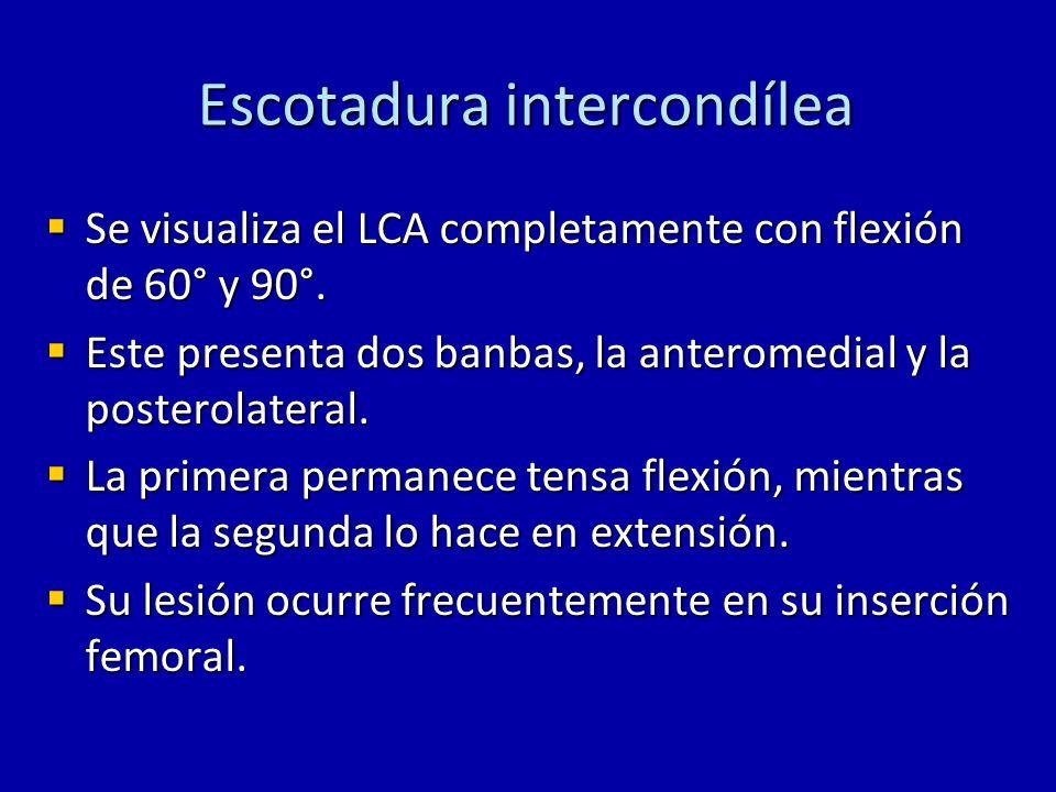 Escotadura intercondílea