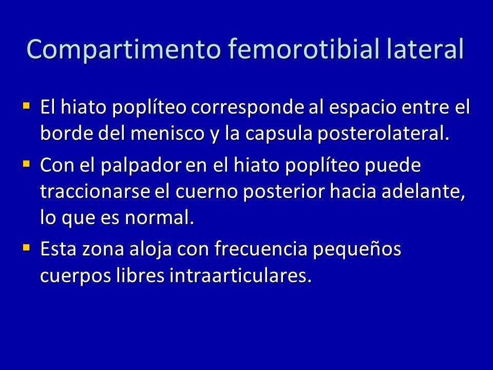 Compartimento femorotibial lateral