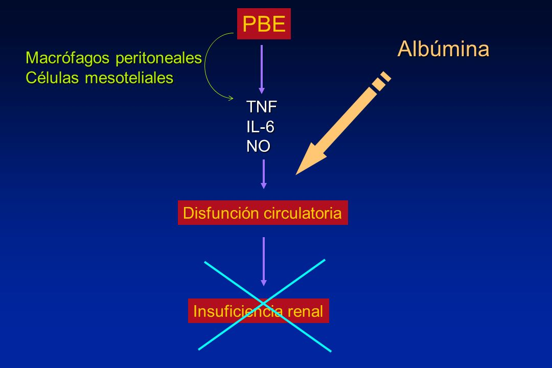 PBE Albúmina Macrófagos peritoneales Células mesoteliales TNF IL-6 NO
