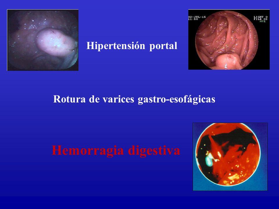 Rotura de varices gastro-esofágicas