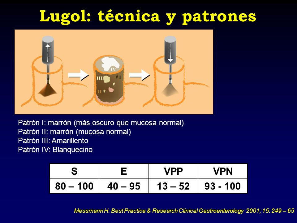 Lugol: técnica y patrones