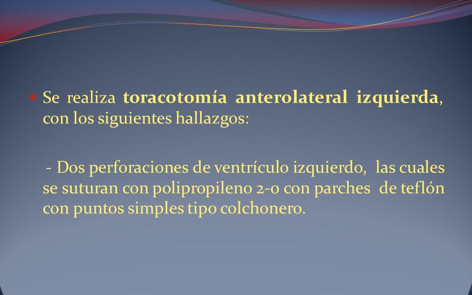 Se realiza toracotomía anterolateral izquierda, con los siguientes hallazgos: