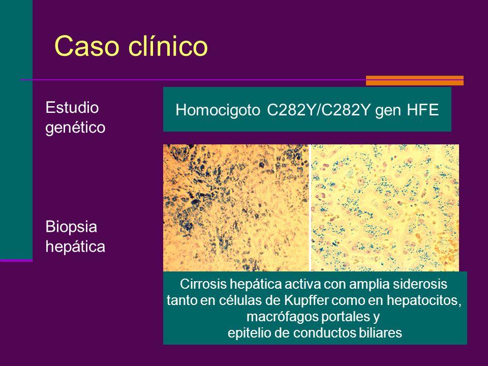 Caso clínico Homocigoto C282Y/C282Y gen HFE Estudio genético